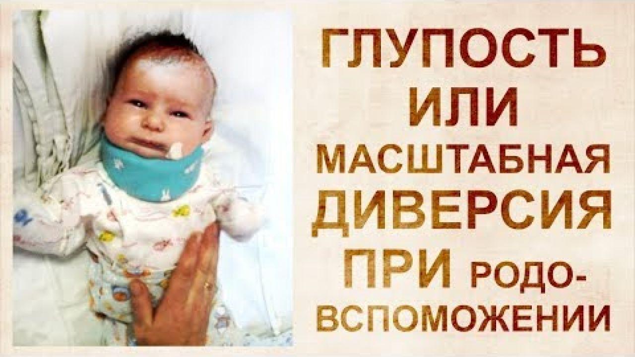 Свобода атланта. Повреждение шейных позвонков при родах